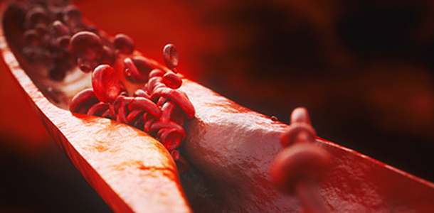 Mikrobiom im Darm spielt wichtige Rolle bei Atherosklerose