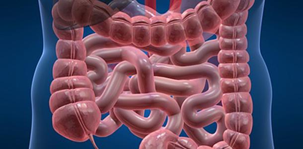 Höhere Vitamin D-Werte tragen zur Prävention von Darmkrebs bei