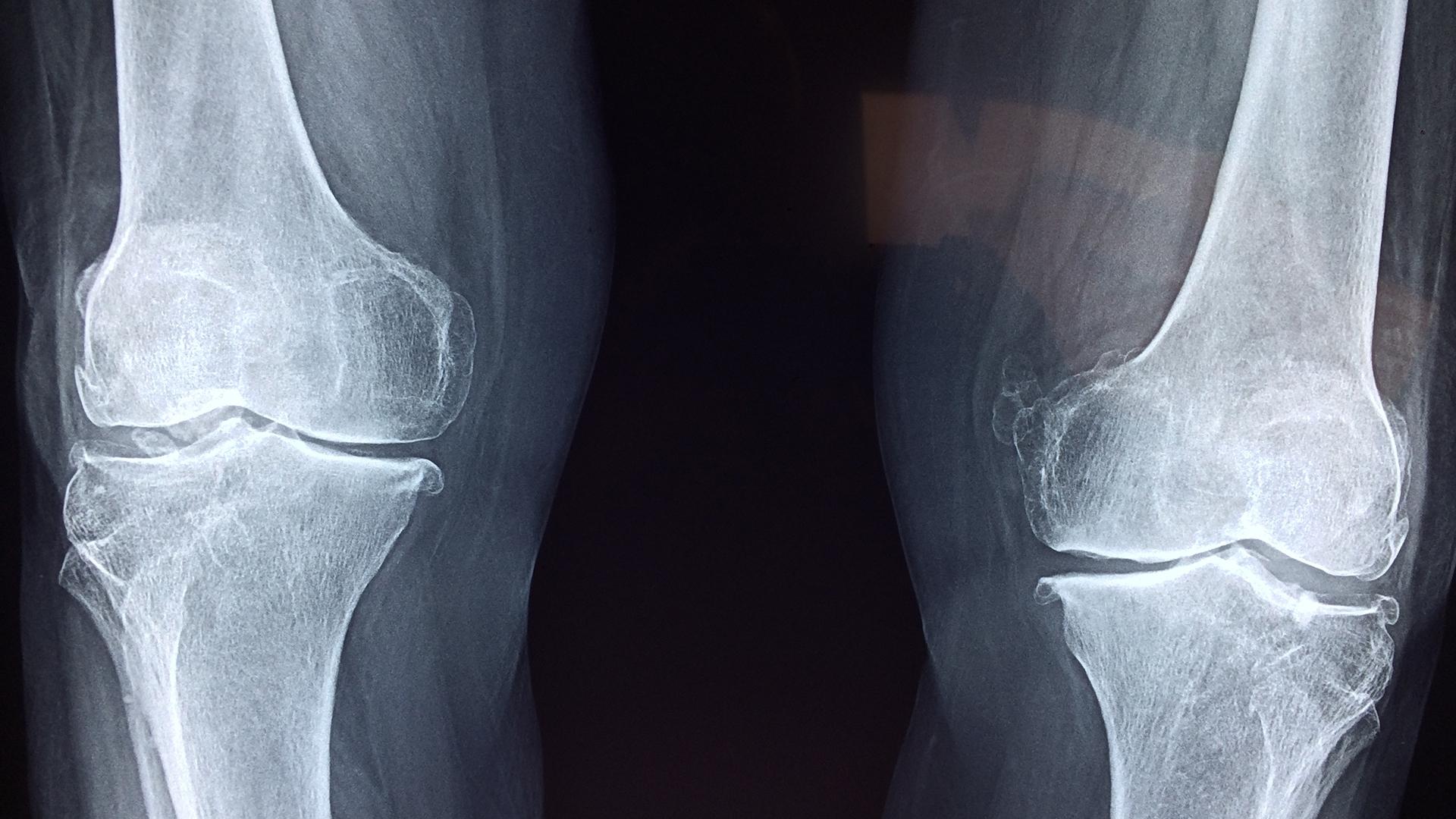 Bei chronisch entzündlichen Darmkrankheiten das Osteoporose-Risiko mit Mikronährstoffen senken