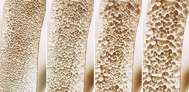 Auf die Gesundheit der Knochen hat die Ernährung einen deutlichen Einfluss, wie eine Auswertung der seit vielen Jahren durchgeführten Rotterdam-Studie zeigt.